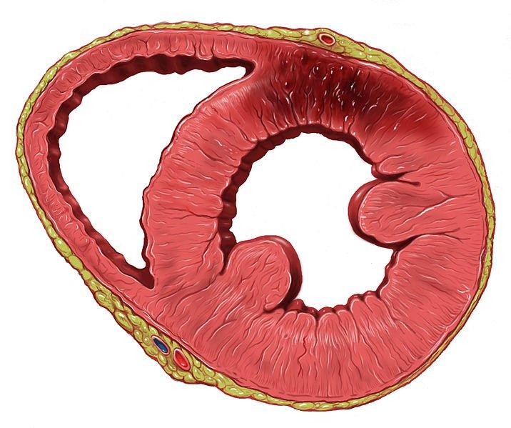 isquemia-corazon