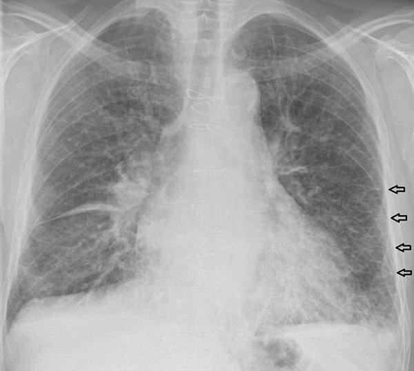 edema-pulmonar-estenosis-mitral