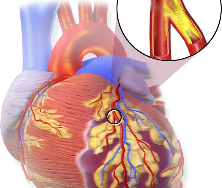 infarto-miocardio
