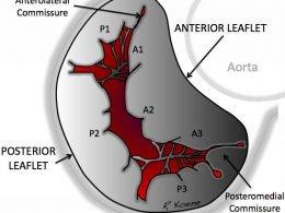 valvula-mitral-comisuras-comisurotomia