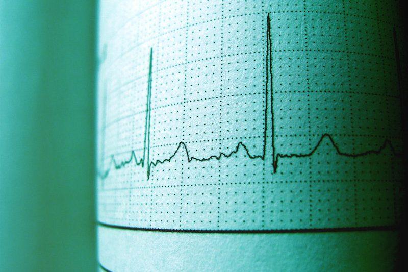 palpitaciones-corazon-insuficiencia-estenosis-mitral