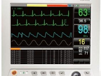 monitor-electrocardiografia