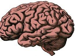 embolia-cerebral