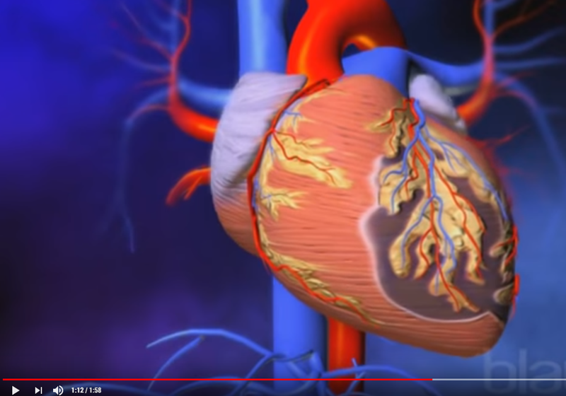 video-asi se produce un infarto