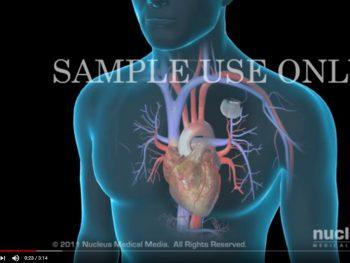 video-implantacion-marcapasos