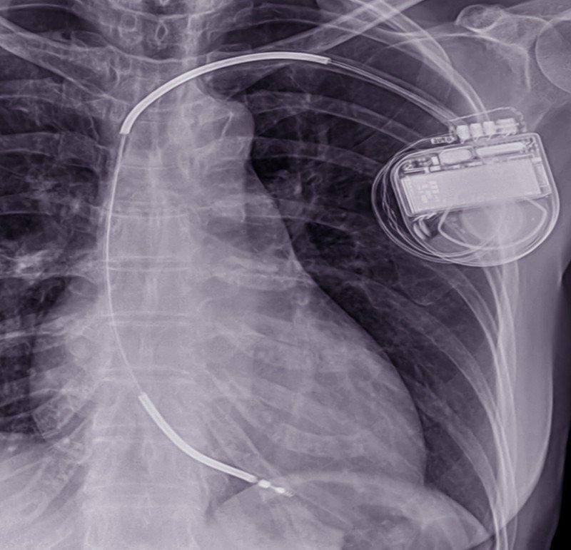 DAI-desfibrilador-implantable