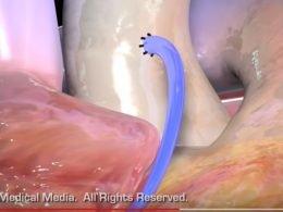 video-comentado-cirugia-revascularizacion-coronaria