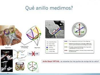 anillo-aortico-foro-transcateter-TAVI