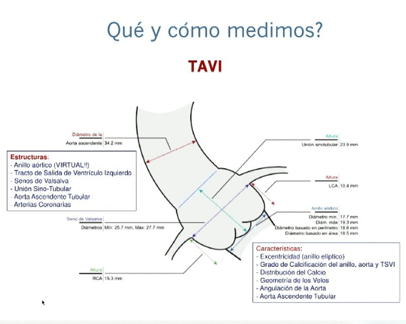 planificacion-TAVI-foro-transcateter