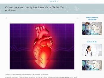 arritmiasevilla-consecuencias-complicaciones-fibrilacion-auricular