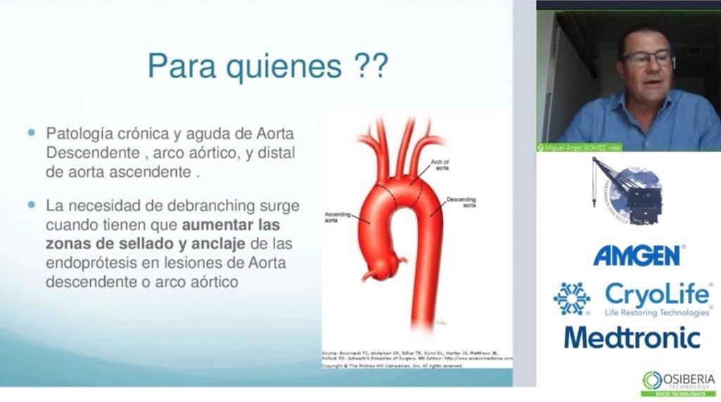 sevilla-cadiz-doctor-gomez-vidal-endoprotesis-ponencia-congreso