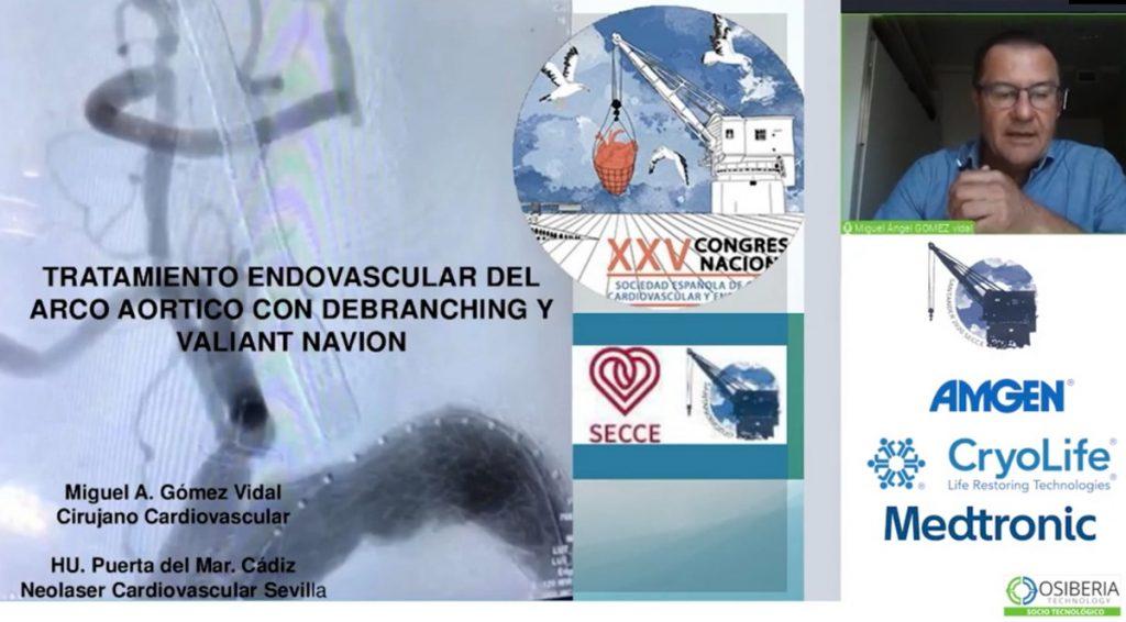 doctor-gomez-vidal-endoprotesis-tratamiento-endovascular