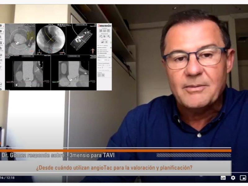 3mensio-doctor-gomez-vidal-cirugia-endovascular-tavi