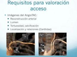 vias-acceso-tavi-carotideo-axilar
