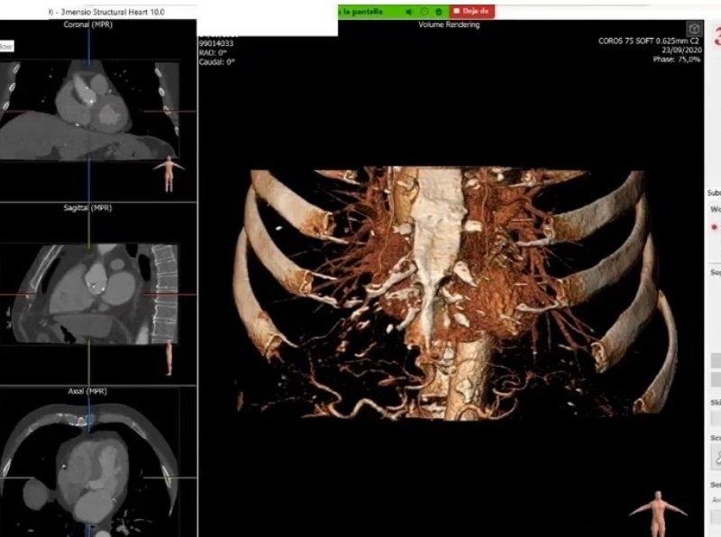 Formación 3Mensio - tavi - valvula-aortica